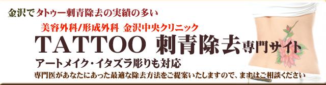 タトゥー刺青除去専門サイト金沢